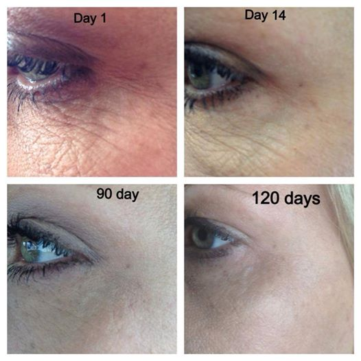 Nerium reduces wrinkles.